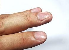 Knabbern Sie? Hypnose kann Ihnen dabei helfen, nie wieder an Ihren Nägeln knabbern zu müssen.