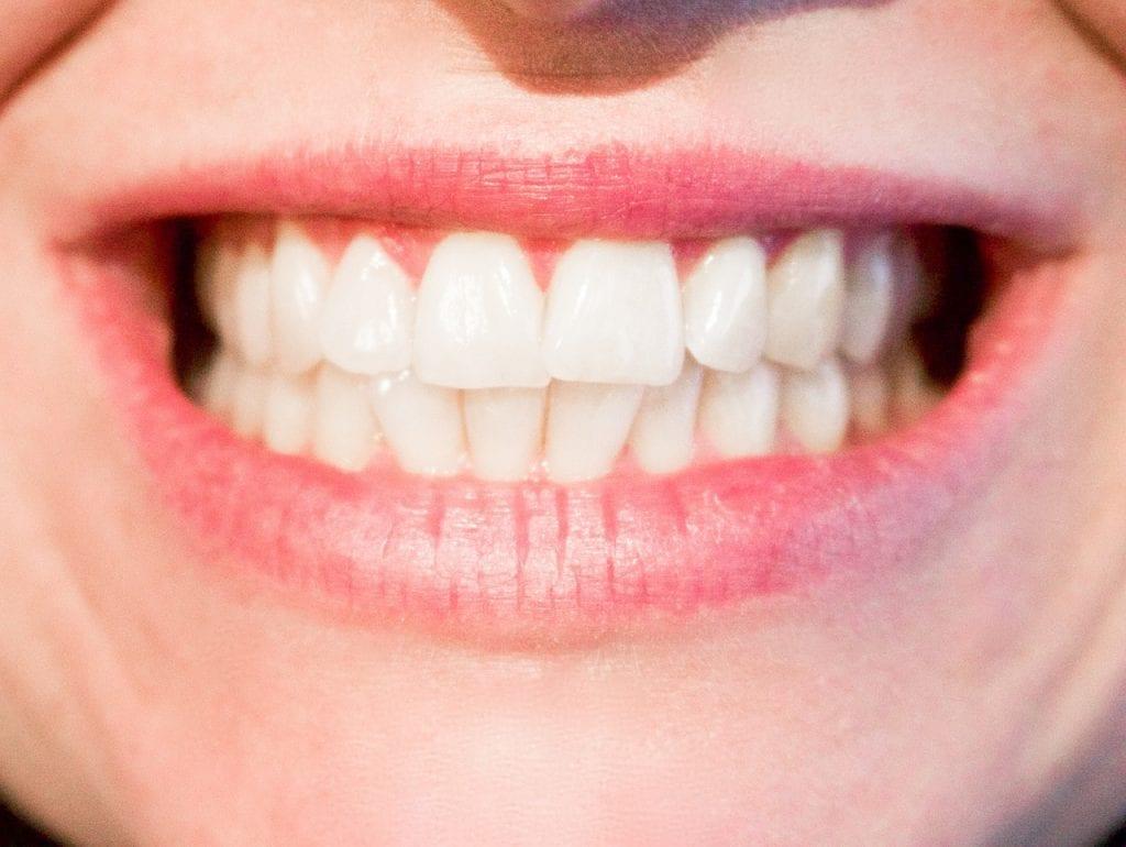 Keine Angst vorm Zahnarzt
